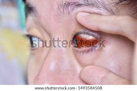 Subconjunctival haemorrhage and brusing around left eye of Southeast Asian young man. It is defined as the presence of heme under the conjunctiva, secondary to a ruptured conjunctival blood vessel.