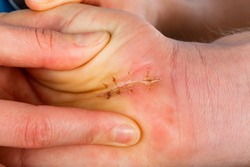 Successful healed surgical suture on palm of hand after operation