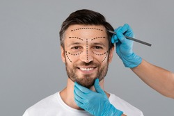 Surgeon hands making marks on smiling man face. Aesthetic Cosmetology, Plastic Surgery concept. Plastic surgeon applying marks with pencil on handsome man face before surgery, grey studio background
