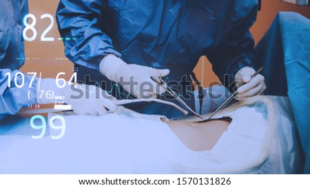 Surgeons team holding medical instruments performing surgery with patient sleeping on operation bed in operation room at hospital. Medical and Healthcare concept. #1570131826