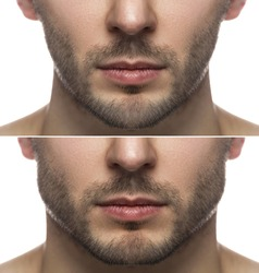 Surgery or mewing exercises. Result of a jawline reshape.