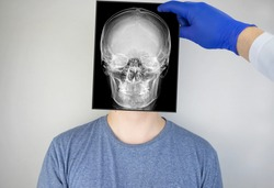 Survey radiography of the skull of a man. A doctor radiologist is studying an x-ray examination. A snapshot of the skull is placed on the patient's head.