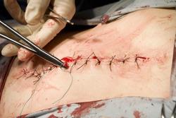 Suture needle
