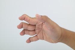 Swan Neck Deformity 4 fingers