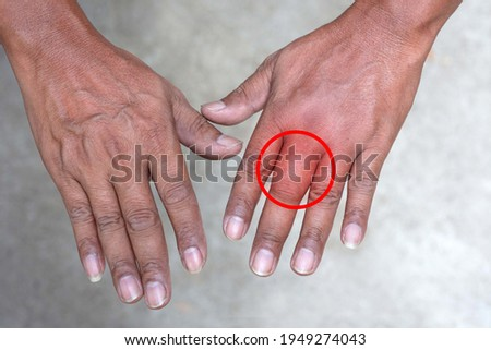 Swollen hand from insect sting, male person showing swollen fingers due to insect bites, closeup of swollen hand with bug bite and red skin, Red graphics on swollen hand positions Photo stock ©