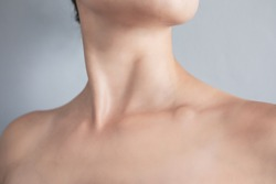 Swollen supraclavicular node. Lump on the clavicle. Fluid-filled lump associated with a tumor or a swollen lymph node.
