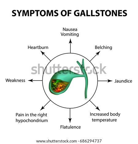 Symptoms Of Stones In The Gallbladder Infographics Illustration On