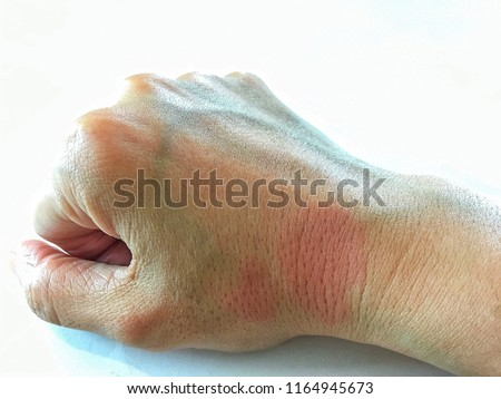Systemic Lupus Erythematosus(SLE) is a chronic disease caused by self-immunity which causes Effects on the organs in the body, especially the skin, joints, blood, kidneys and central nervous system.