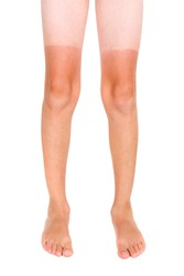 Tan lines on a child's legs