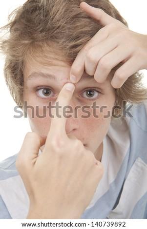 teen boy squeezing acne spot