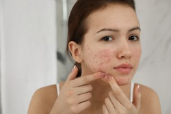 Teen girl with acne problem squeezing pimple indoors
