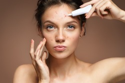 Teen girl with problem skin applying treatment cream on beige background. Skin care concept