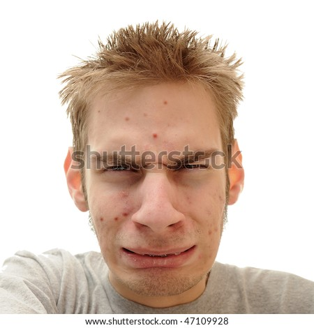 Teenage looks embarrassed and confused about the pimples that are showing up all over his face.