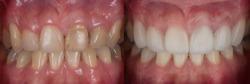 Teeth and smile makeover with dental crown and dental ceramic veneers.
