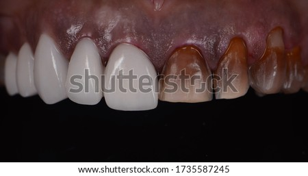 Teeth before and after dental treatment. Teeth Whitening by dental ceramic veneer correct severely discoloured teeth.
