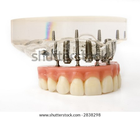 teeth implantation model