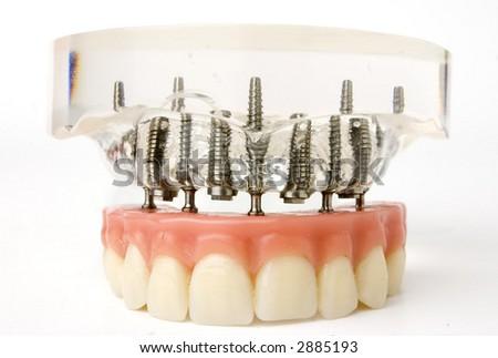 teeth implants model