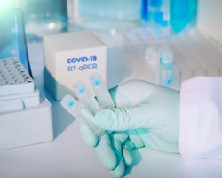 Test kit to detect novel COVID-19 coronavirus in patient samples. RT-PCR kit reagents convert viral Covid19 RNA to DNA and amplify specific region of 2019-nCov. Hand in glove holding test tubes.