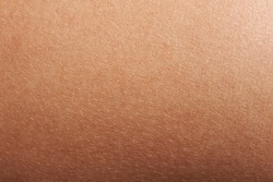 Texture of human skin closeup with small defects