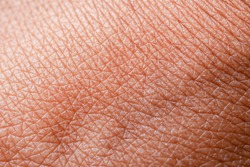 texture of the skin.Dark skin of woman hand macro. Human skin texture background