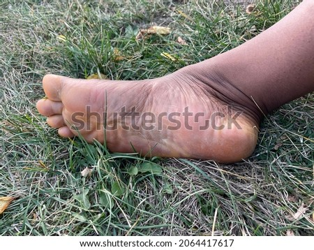 The bare sole of a Black person's foot on grass