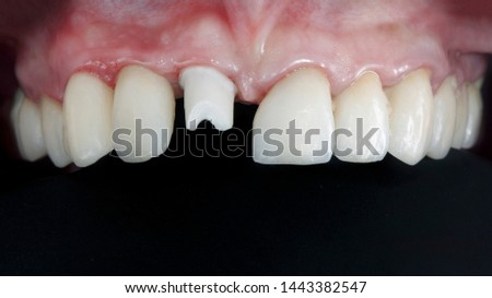 the base is the basis for the installation of dental crowns of the front tooth