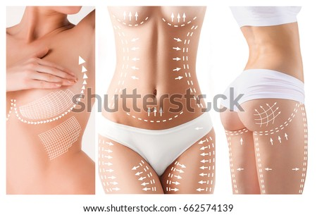 The cellulite removal plan. White markings on young woman body Foto stock ©