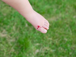 the child injured his leg. The girl provides first aid to her child. The girl injured her leg. A wound on the leg. injured to the blood. blood on the baby s foot