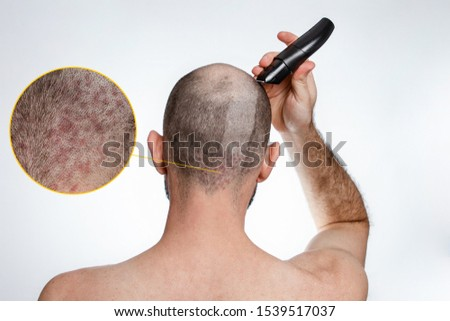 The concept of baldness and baldness. A man holds a hair clipper and shaves the hair on top of his head. A shaved strip of hair shows psoriasis. Rear view