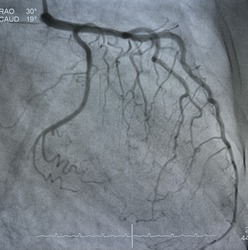 The coronary artery angiography (cag) was performed normal left coronary artery angiography (lca).