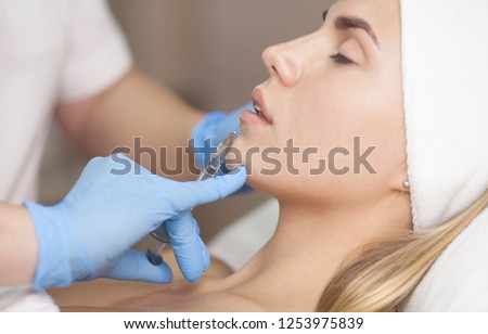 The cosmetologist makes injections of botulinum toxin in the lips of the patient. Cosmetology skin care. Lip filler injection.