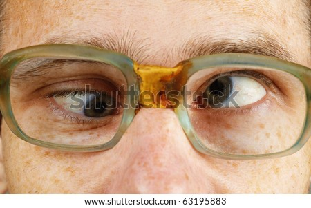 The cross-eyed person in old-fashioned spectacles close up