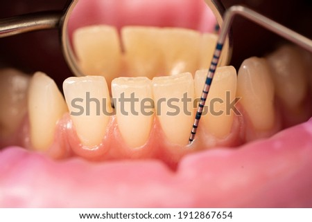 the dentist examines the depth of the patient's gums  Stock photo ©