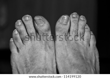 the dirty feet of a poor man #114199120