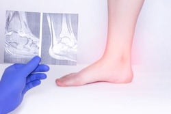 The doctor conducts a medical examination of the ankle joint using an x-ray to detect the disease of arthrosis, diagnostics