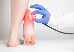 The doctor's hand in a medical glove holds a stethoscope near the sore heel of a female patient. Heel spur and gout diseases concept, osteomyelitis