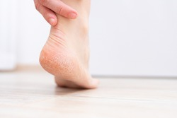 The dry skin on the heel is cracked. Treatment concept with moisturizing creams and exfoliation for healing wounds and pain when walking. Dehydrated skin on the heels of female feet