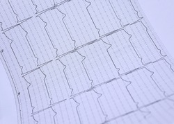 The ekg paper shows the results of the ECG.