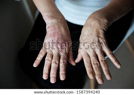 The elderly woman's hands are affected by psoriasis. Psoriasis skin. Closeup of rash and scaling on the patient's skin. The concept of chronic disease treatment. Dermatological problems.