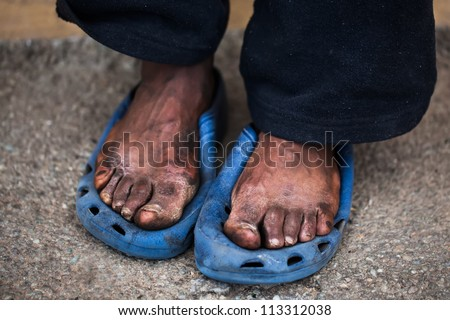 The feet of a old man who are in pain.