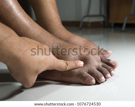 The feet of people with diabetes, dull and swollen. Due to the toxicity of diabetes placed on a white background. Fingers hit the back of the diabetic foot. To test foot swelling. #1076724530