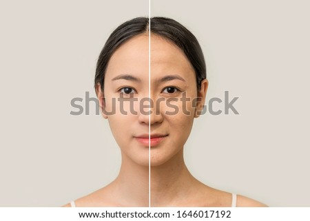 the female face of an Asian woman, the concept of beauty before and after contrast, the power of retouching. skin care, prolongation of youth. women's cosmetology