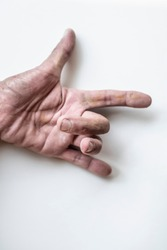 The finger of an elderly person who is sick, the trigger lock finger
