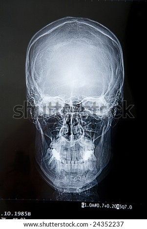 the first floor of a radiograph of a human skull - stock photo