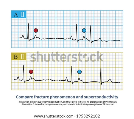 The fracture phenomenon should not be misdiagnosed as supernormal conduction, which is delayed, such as normal PR interval. Photo stock ©
