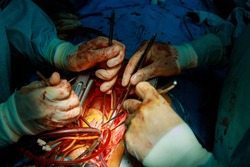 The hands of medic surgeon is stitching a wound after an operation in a hospital