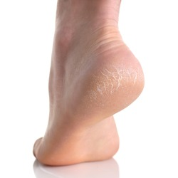 The heel of foot with bad skin is covered with cracks. The concept using medical treatment with moisturizers and also vedekure and peeling of wound healing and pain while walking swatch dermatologist