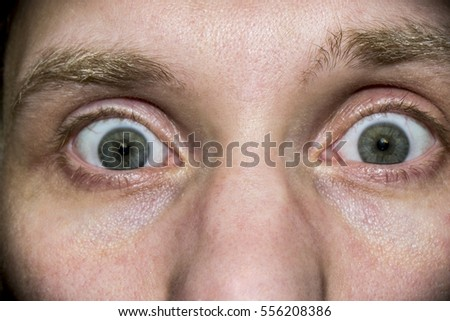 the human eye from a close distance - Shutterstock ID 556208386