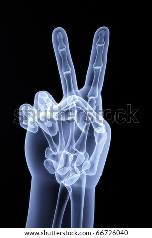 the human hand shows the number of fingers under the X-rays