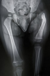 The image is shown Proximal Femoral Focal Deficiency. It's severe shortening and pseudarthrosis of proximal femur.